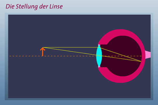 Linsen-Animation starten