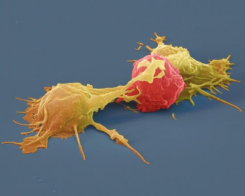 SWR Tatort Mensch - Natürliche Killerzellen attackieren Krebszelle